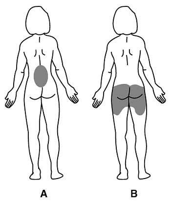 Apatinės nugaros dalies skausmas. Kada verta rimtai sunerimti?